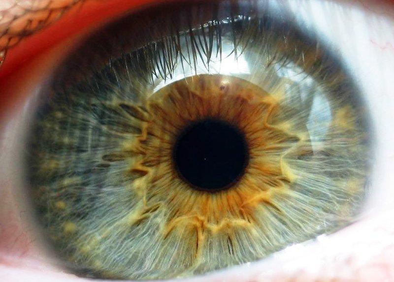 Глазная сетчатка