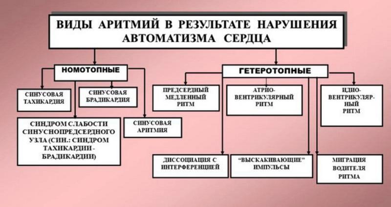 Виды аритмий