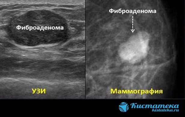 Среди доброкачественны очаговы изменений молочной железы встречаются липома, фибролипома, листовидная фиброаденома