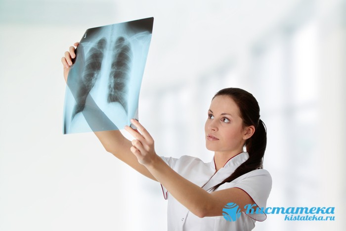 Рентген легки
