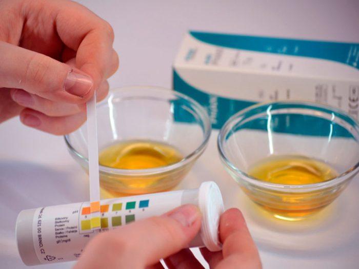 Сколько держится алкоголь в моче до полного вывода