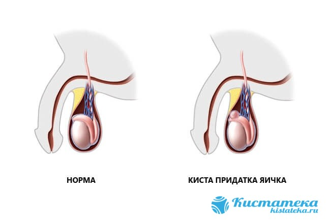 Сперматоцеле возникает от нарушения выработки и оттока секрета по придаткам