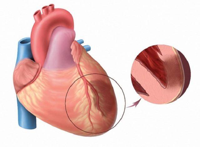 В 90% случаев — это острый инфаркт миокарда