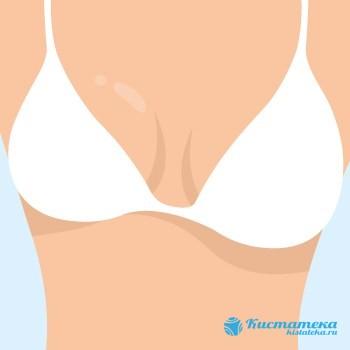 Крупное образование в молочном органе приводит к деформации и асимметричности железы