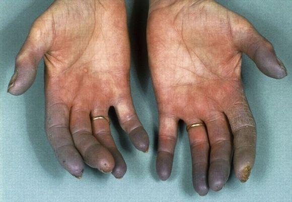 Заболевание пальцев рук