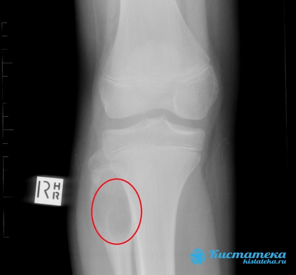 Со временем новообразование поражает костные ткани и разрушает и