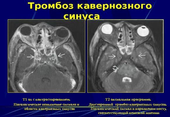 Заболевание головного мозга