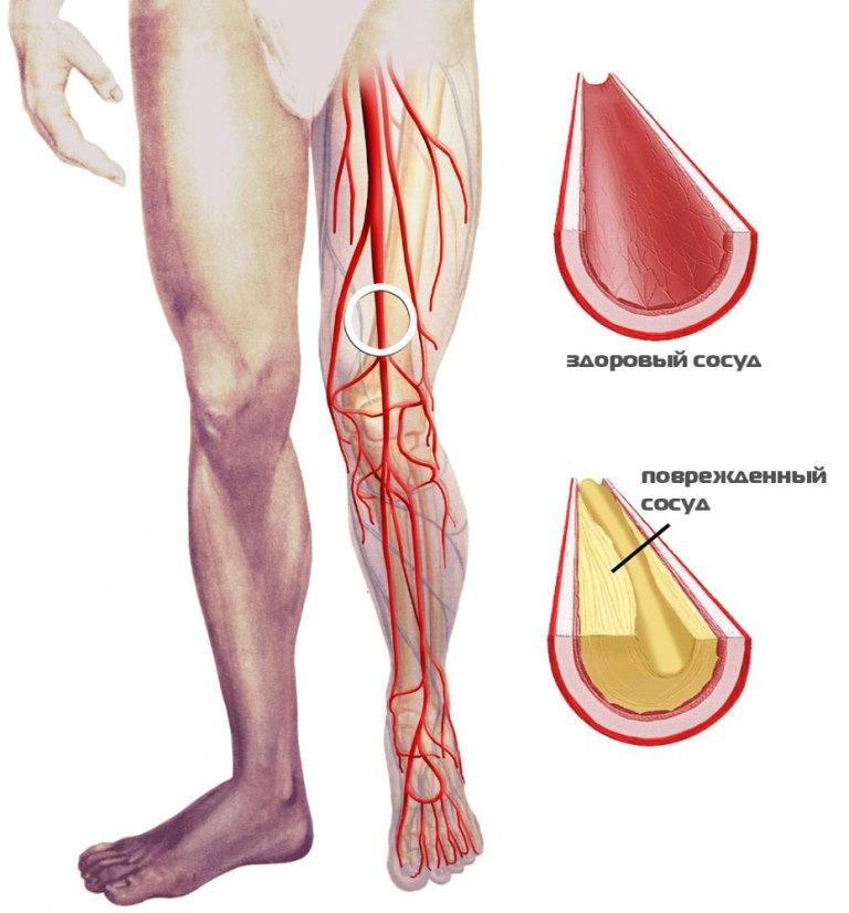 Как лечить атеросклероз нижних конечностей в домашних условиях