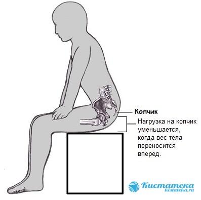 Так старается сидеть человек, чтобы уменьшить боль