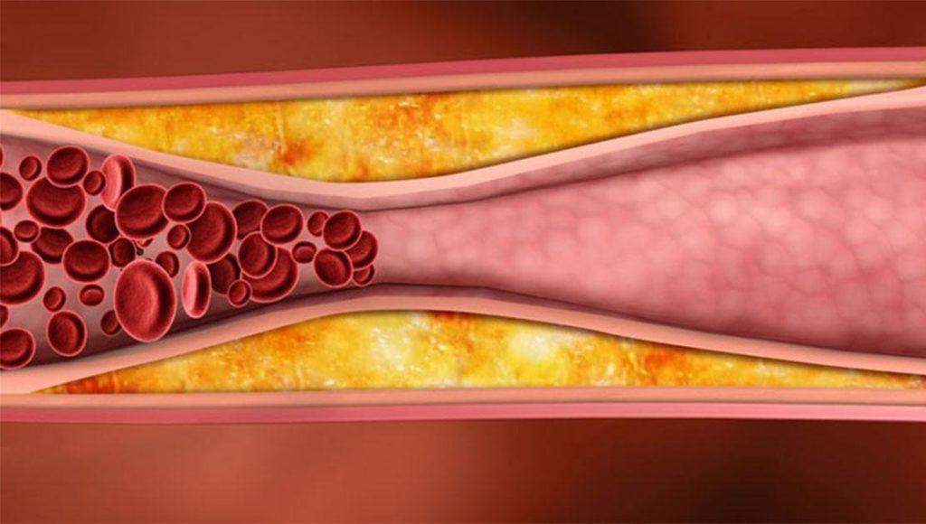 Что означает анализ холестерин 3?