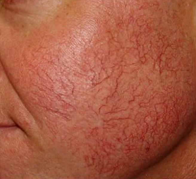 Развитие воспалительных процессов и нарушением микроциркуляции кожи