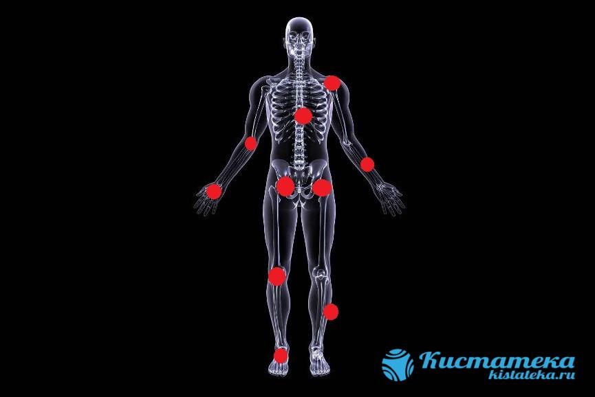 Доброкачественные новообразования возникают в разны частя тела