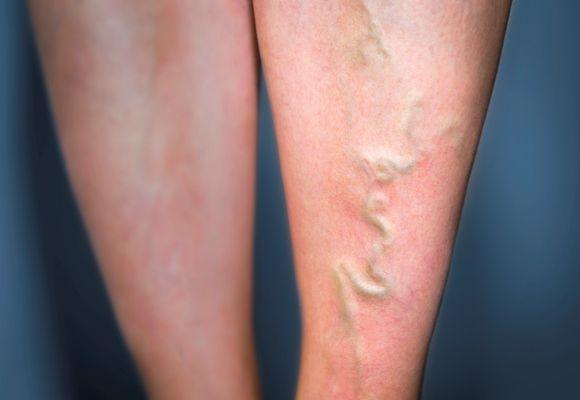 Тромбоз с воспалением стенки вены