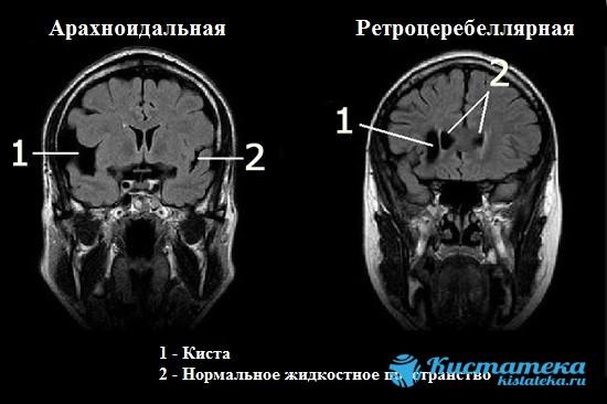 Как выглядят араноидальная и ретроцеребеллярная кисты головного мозга