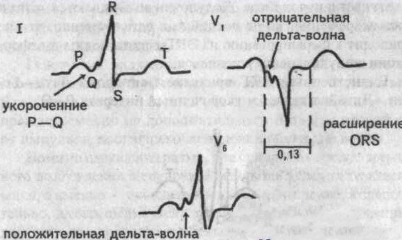 Кардиограмма синдрома Вольфа-Паркинсона-Уайта
