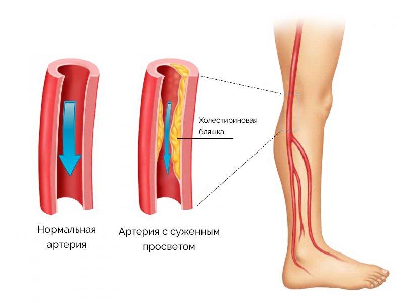 При поражении артерий ног первую очередь наступает чувство холода стопы