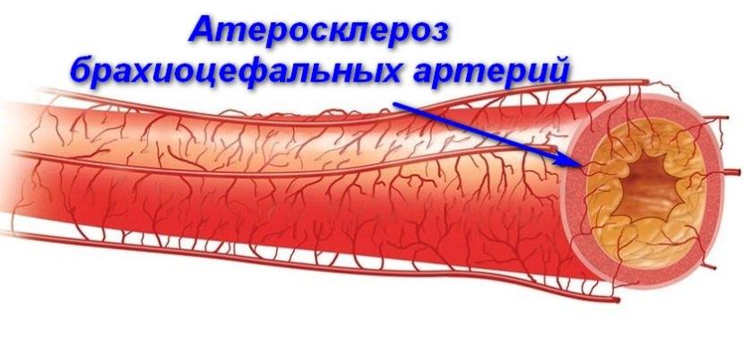 атеросклероз брахиоцефальных артерий