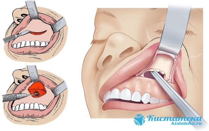 Разрез производится под губой, после чего выполняется вскрытие и через него удаляют новообразование в пазуе