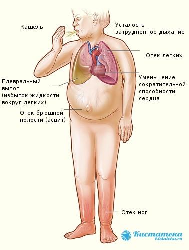 Основные признаки асцита