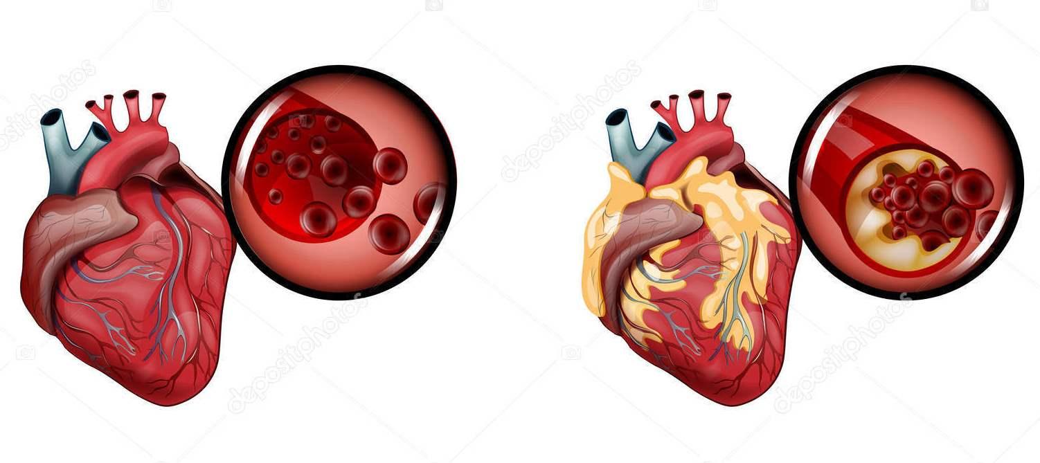 Aтеросклероз сосудов сердца очень трудно лечится