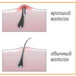 Схема вросшего волоска