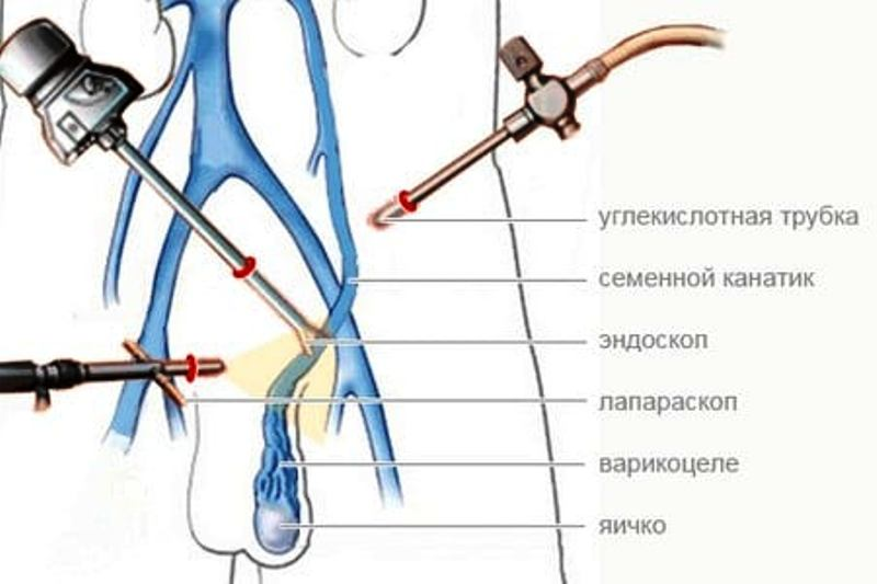 Операция по Иваниссевичу