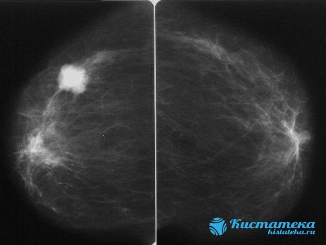 Визуализация молочны органов может показать кисты, объемные образования (опуоли), кальцинаты