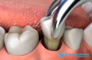 Полное удаление зуба и кистозной капсулы