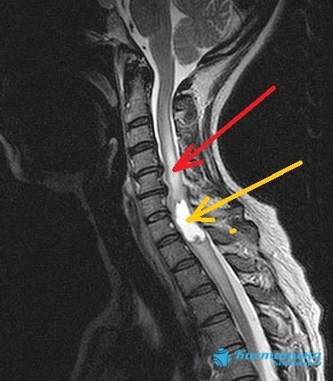Красной стрелкой обозначена зона сдавления спинного мозга с явлениями миелопатии, желтой стрелкой - сформировавшаяся внутримозговая киста спинного мозга (сирингомиелитическая киста)