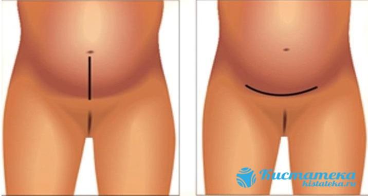 Кожу обрабатывают специальным антисептиком, затем через большой разрез на передней стенке живота осуществляется доступ к матке