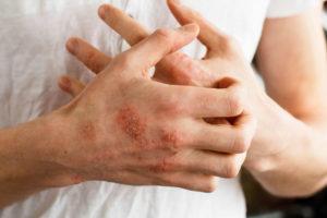 сыпь от перчаток на руках
