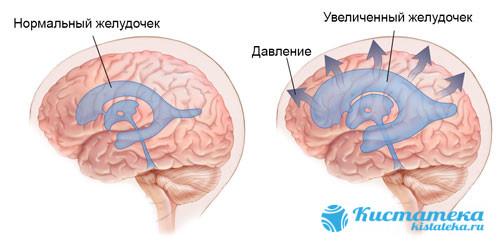 Жидкость всасывается желудочками, которые начинают давить на мозг