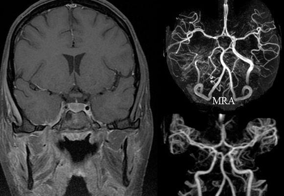 Рентген головного мозга