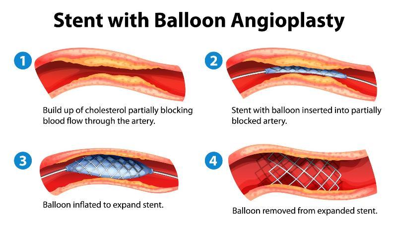 Принцип ангиопластики