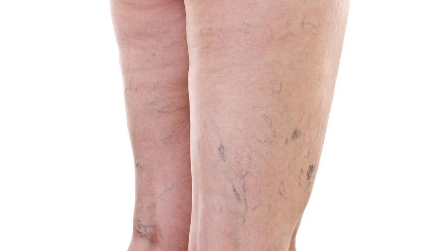 Проявление варикоза на ногах