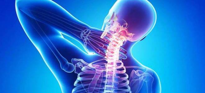 Лечение остеохондроза шейного отдела позвоночника. Чем и ...