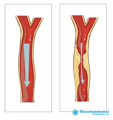 Атерома кожи появляется из-за того, что происодит закупорка протоков сальной железы