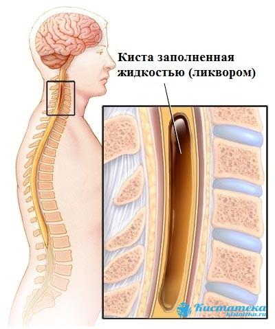 Сирингомиелическая киста поражает только шейный отдел