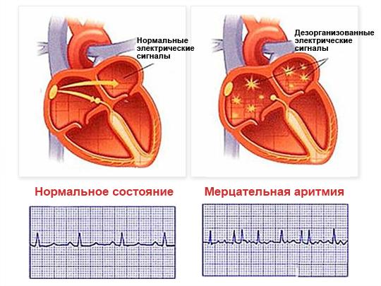 Поступающие в атриовентрикулярный узел импульсы имеют различную частоту и силу, многие из них не могут пройти в желудочки