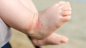 ножки ребенка с пятнами