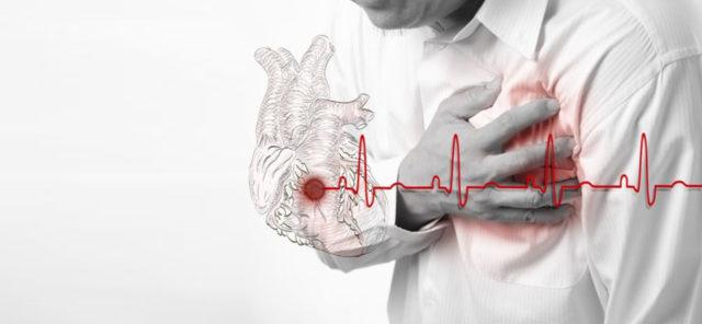 На фоне атеросклероза может возникнуть спазм коронарных сосудов, который становится причиной инфаркта