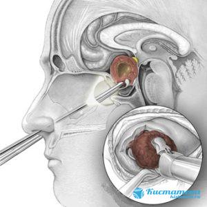 Опуоль удаляют через носовое отверстие
