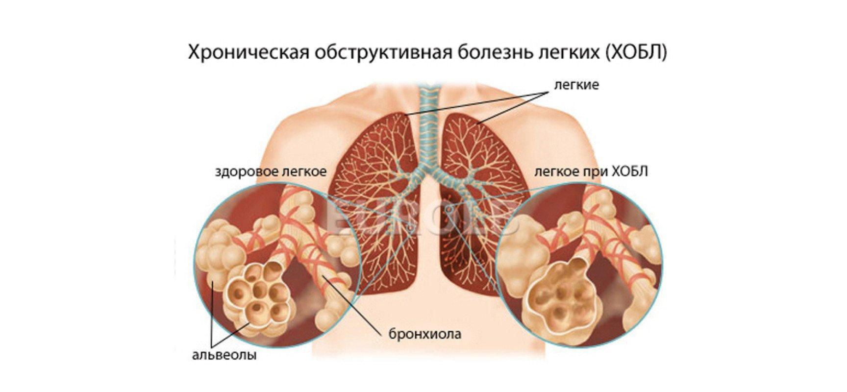 При определенной степени тяжести заболевания необходимо назначить медикаментозные препараты