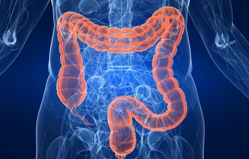 Расширение кишечника