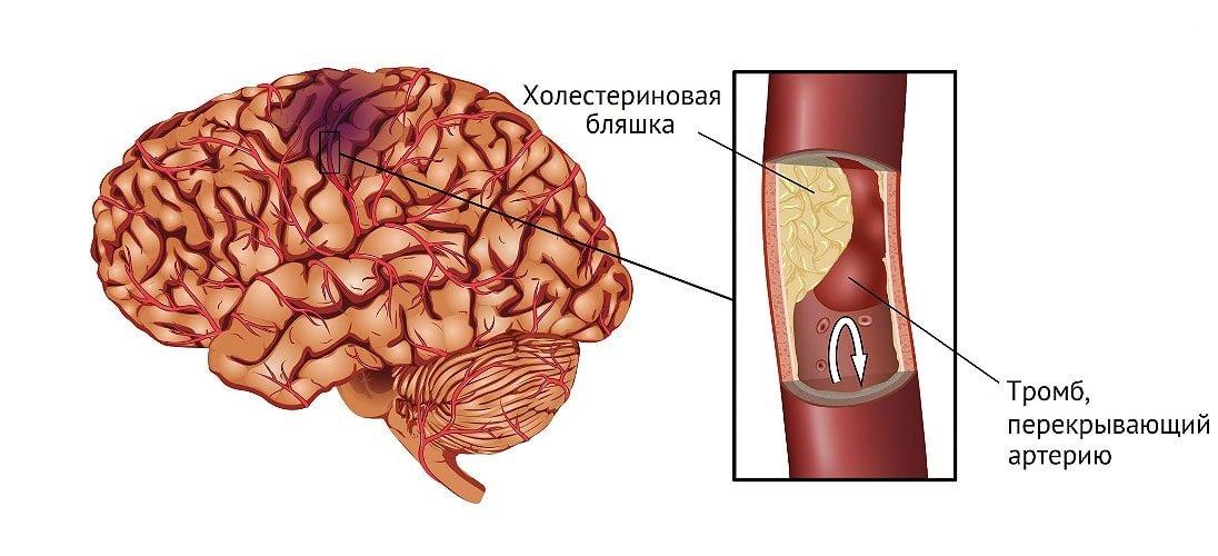 Развитие атеросклеротических бляшек в сосудах головного мозга может длится не один десяток лет