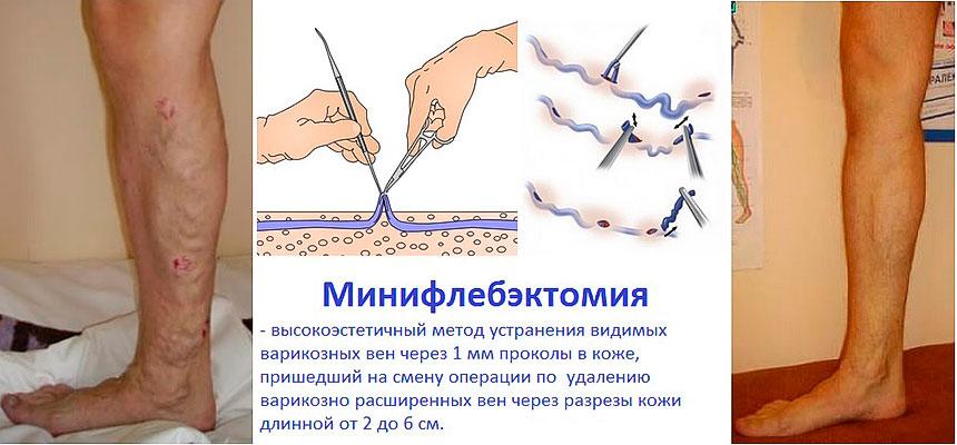 Лечение варикоза вен - минифлебэктомия