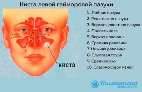 Месторасположение патологии