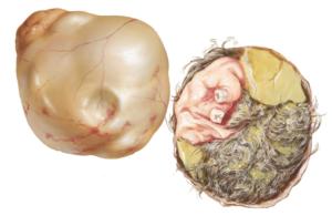 Опасна ли дермоидная киста яичника?