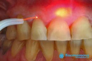 Обладает высокой эффективностью, помогает соранить зубную кость и исключает долгий период реабилитации