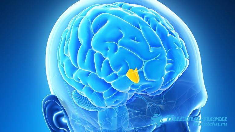 Разрастаясь, опуоль сдавливает зрительный нерв, соседние структуры головного мозга